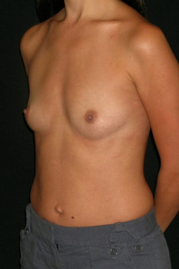 Breast Augmentation Gallery - Patient 23533128 - Image 3