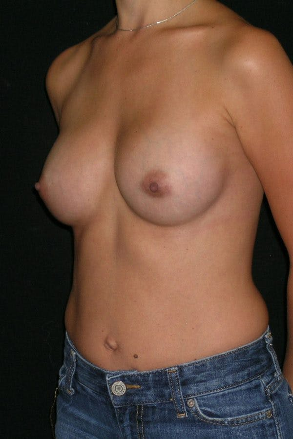 Breast Augmentation Gallery - Patient 23533128 - Image 4