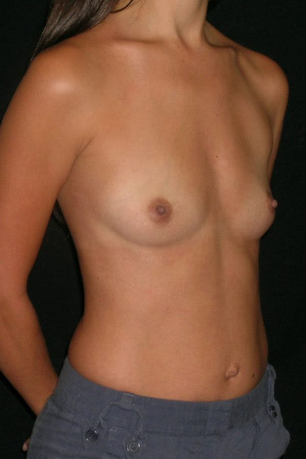Breast Augmentation Gallery - Patient 23533128 - Image 5