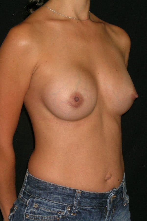 Breast Augmentation Gallery - Patient 23533128 - Image 6