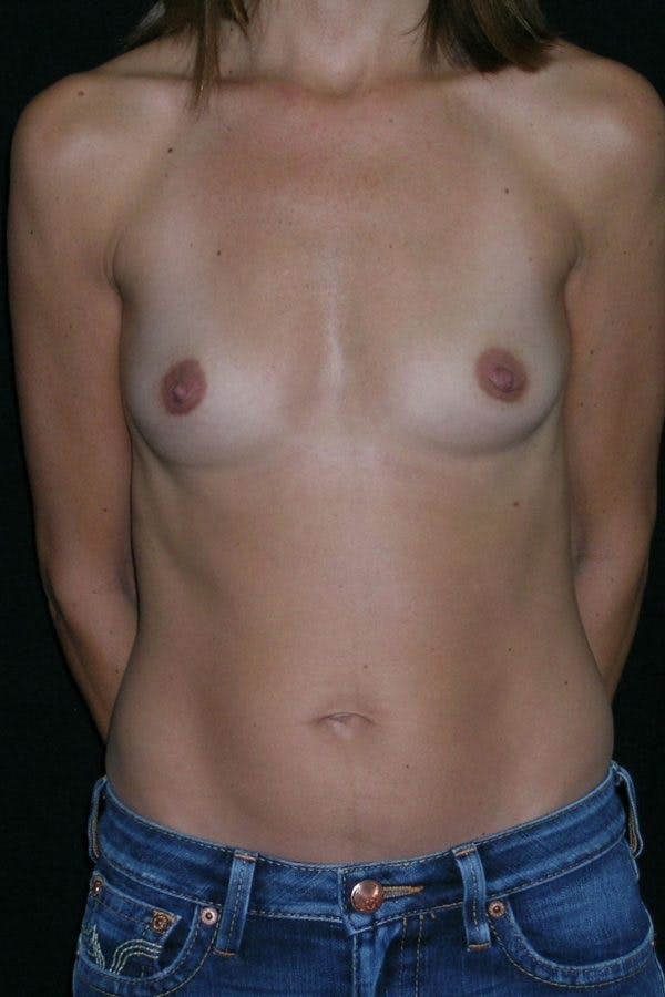 Breast Augmentation Gallery - Patient 23533130 - Image 1