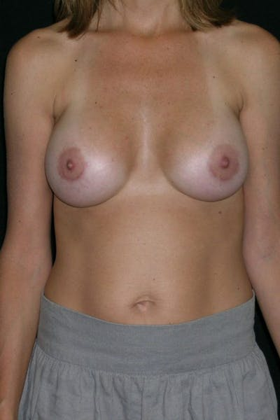Breast Augmentation Gallery - Patient 23533130 - Image 2