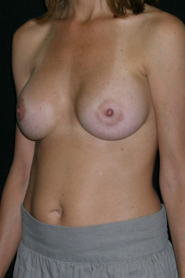 Breast Augmentation Gallery - Patient 23533130 - Image 4