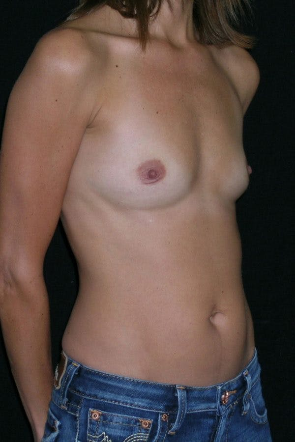 Breast Augmentation Gallery - Patient 23533130 - Image 5