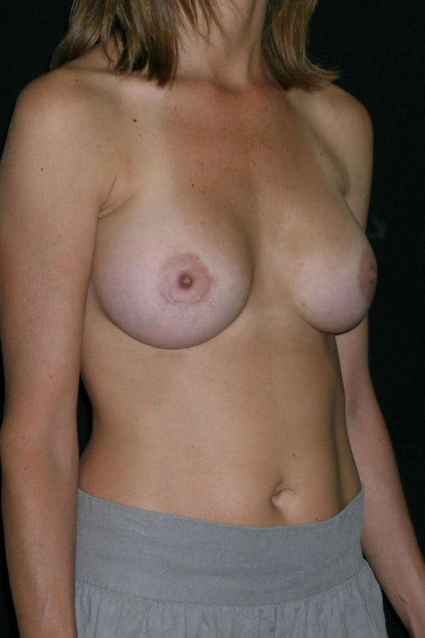 Breast Augmentation Gallery - Patient 23533130 - Image 6