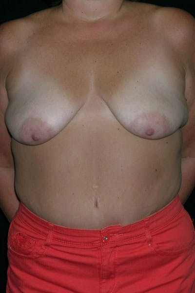 Breast Augmentation Gallery - Patient 23533133 - Image 1