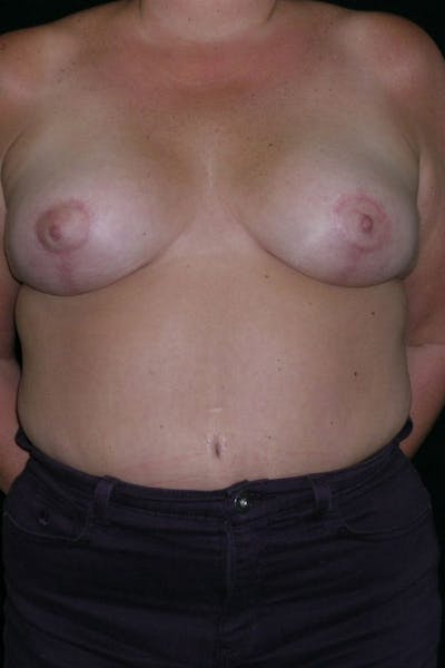 Breast Augmentation Gallery - Patient 23533133 - Image 2