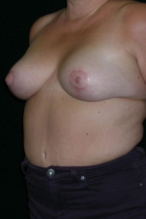 Breast Augmentation Gallery - Patient 23533133 - Image 4