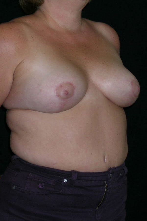 Breast Augmentation Gallery - Patient 23533133 - Image 6