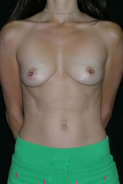Breast Augmentation Gallery - Patient 23533140 - Image 1