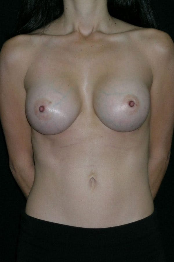 Breast Augmentation Gallery - Patient 23533140 - Image 2