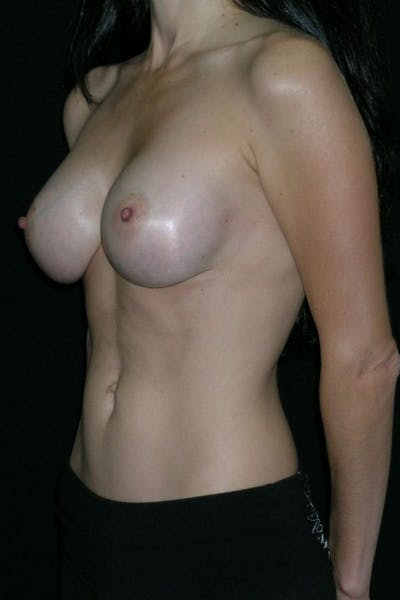 Breast Augmentation Gallery - Patient 23533140 - Image 4