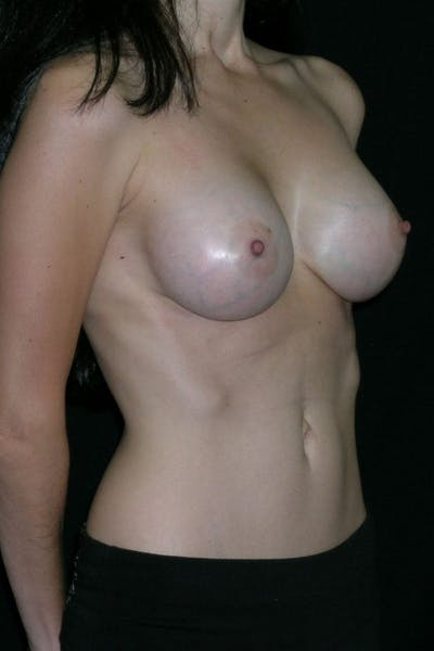 Breast Augmentation Gallery - Patient 23533140 - Image 6