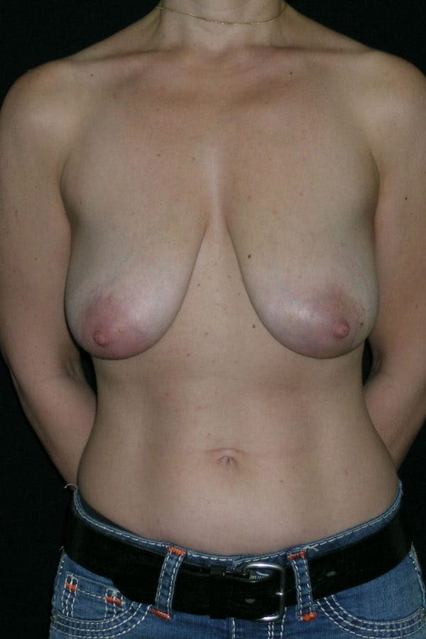 Breast Augmentation Gallery - Patient 23533144 - Image 1