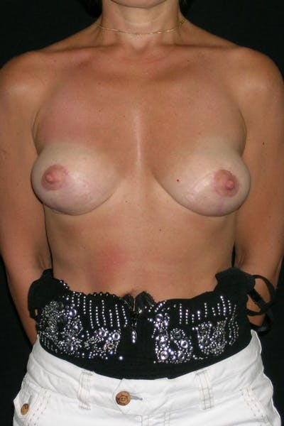 Breast Augmentation Gallery - Patient 23533144 - Image 2