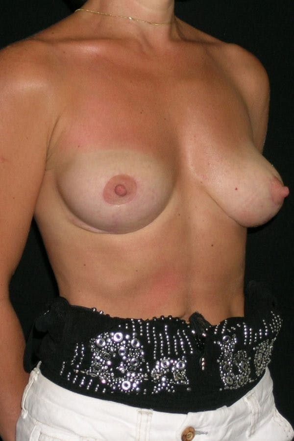 Breast Augmentation Gallery - Patient 23533144 - Image 6