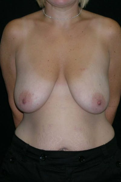 Breast Augmentation Gallery - Patient 23533145 - Image 1