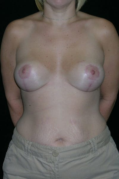 Breast Augmentation Gallery - Patient 23533145 - Image 2