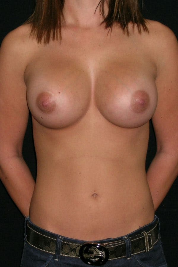 Breast Augmentation Gallery - Patient 23533147 - Image 2