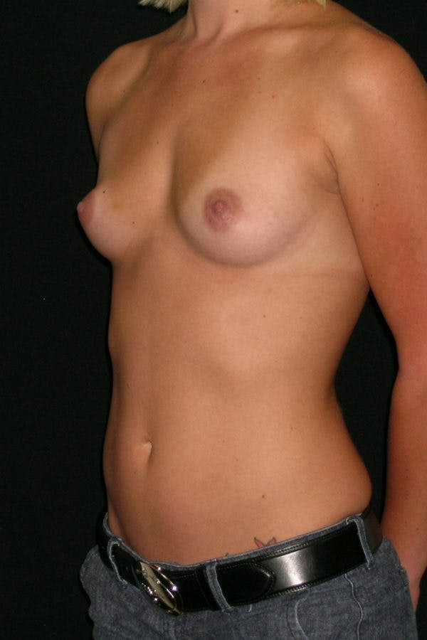 Breast Augmentation Gallery - Patient 23533147 - Image 3
