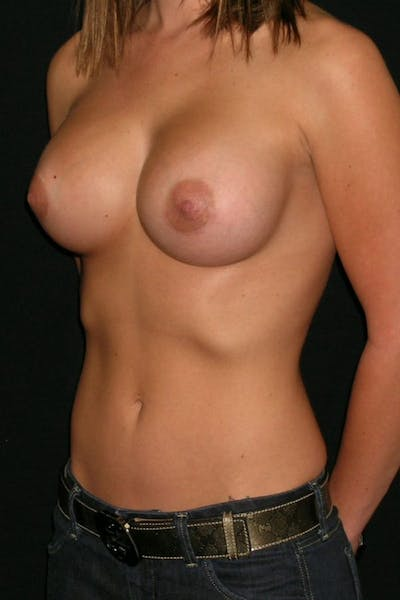 Breast Augmentation Gallery - Patient 23533147 - Image 4