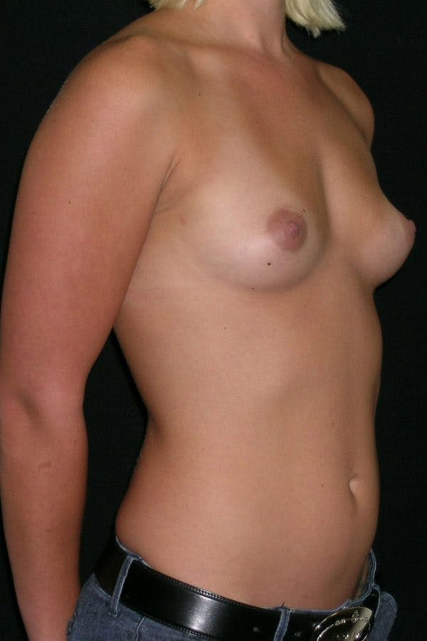 Breast Augmentation Gallery - Patient 23533147 - Image 5