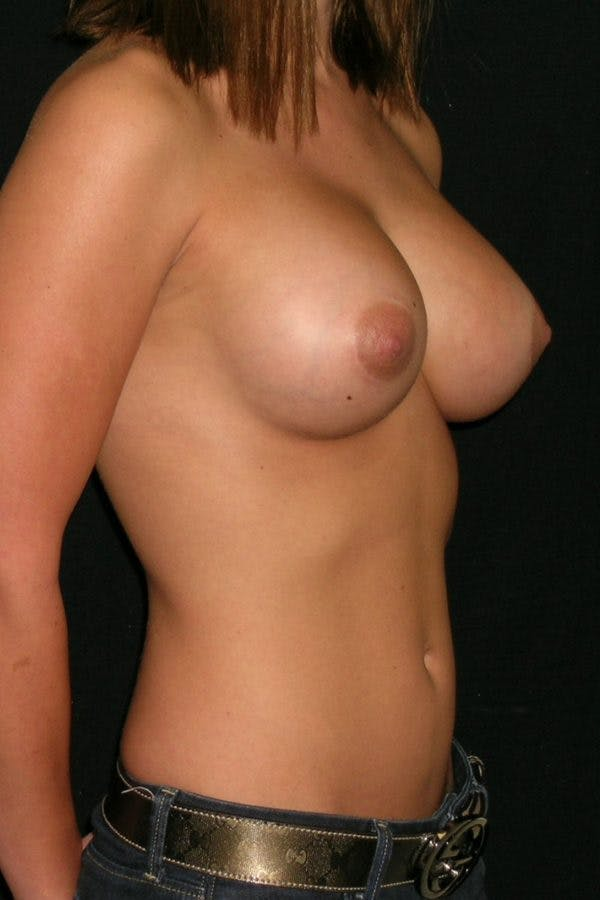Breast Augmentation Gallery - Patient 23533147 - Image 6