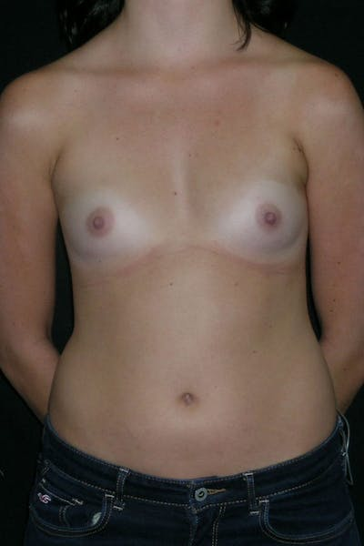 Breast Augmentation Gallery - Patient 23533148 - Image 1