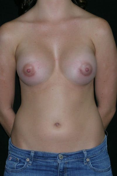 Breast Augmentation Gallery - Patient 23533148 - Image 2