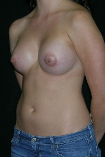 Breast Augmentation Gallery - Patient 23533148 - Image 4