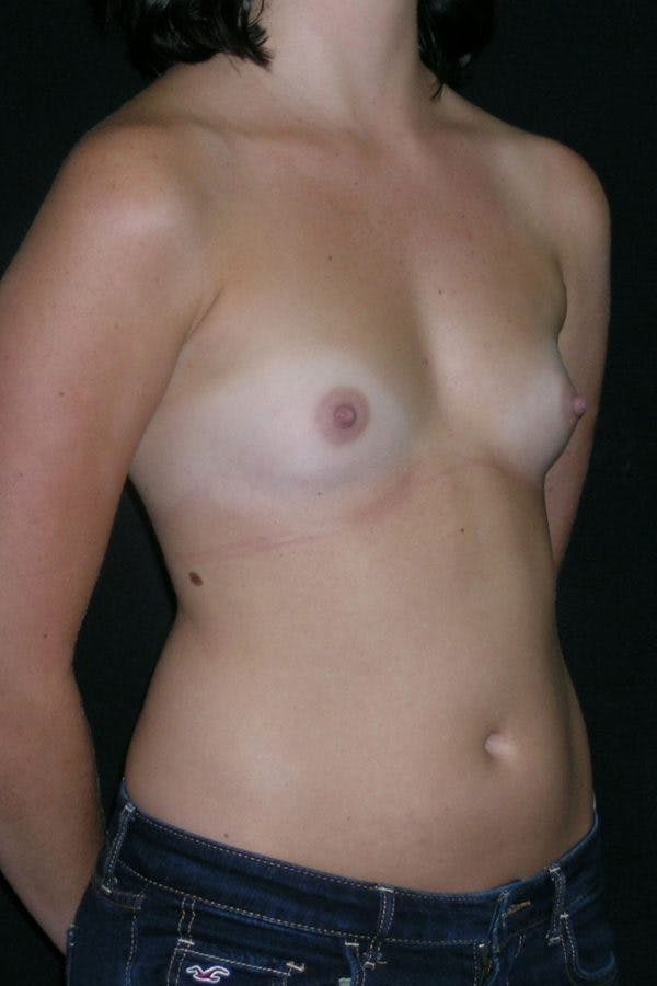 Breast Augmentation Gallery - Patient 23533148 - Image 5
