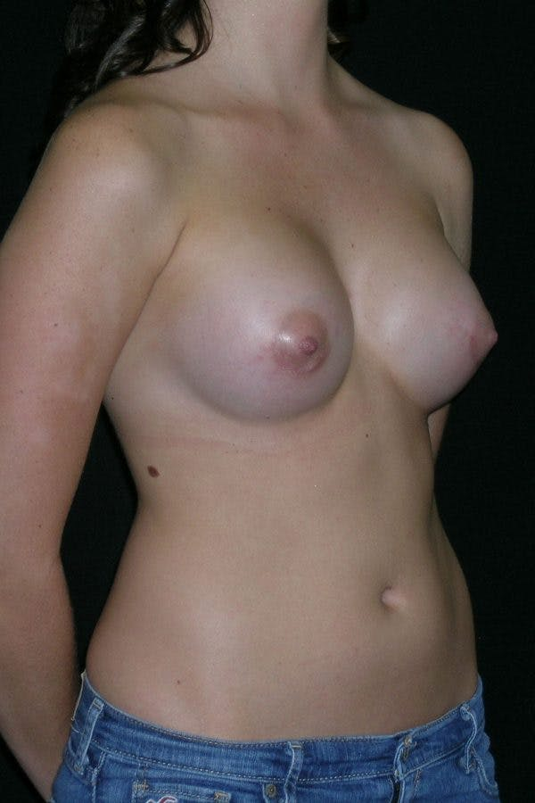 Breast Augmentation Gallery - Patient 23533148 - Image 6