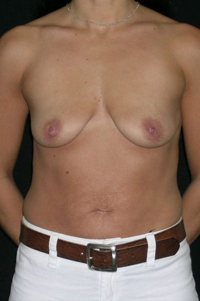 Breast Augmentation Gallery - Patient 23533152 - Image 1