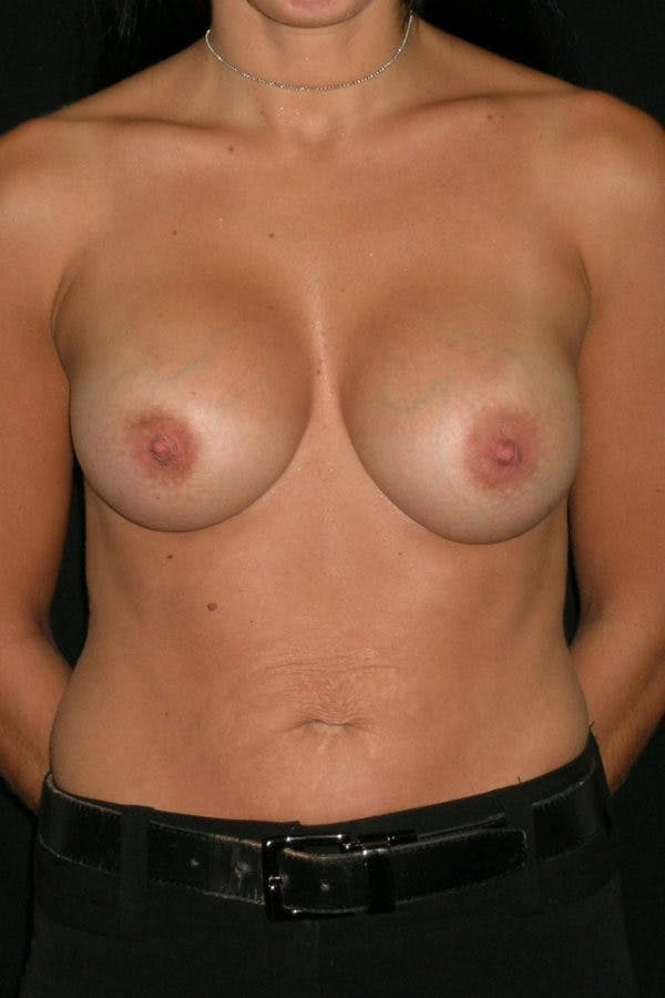 Breast Augmentation Gallery - Patient 23533152 - Image 2
