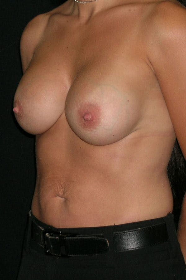 Breast Augmentation Gallery - Patient 23533152 - Image 4