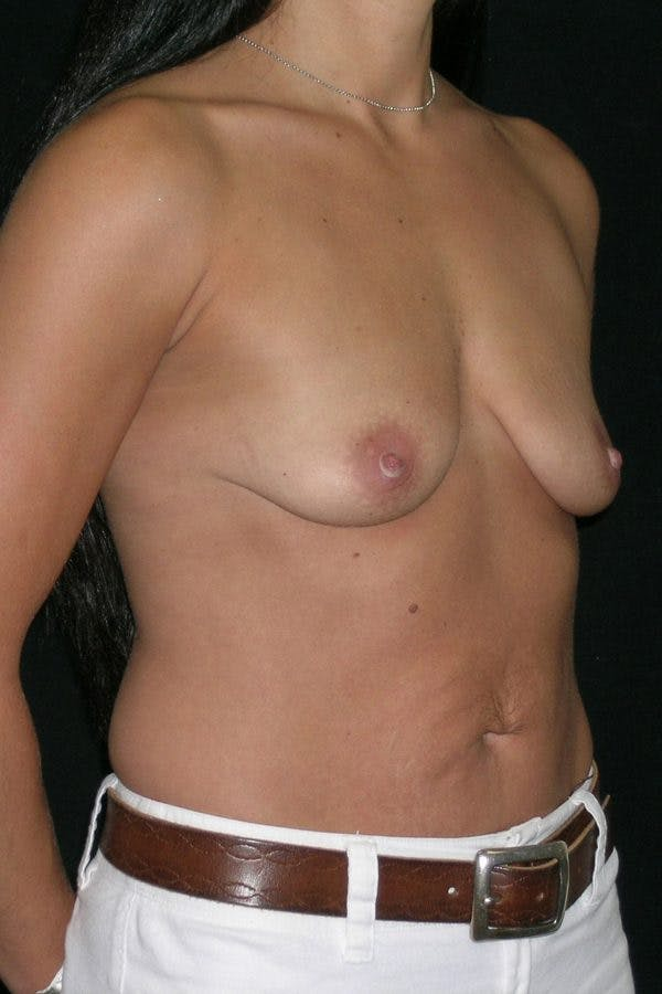 Breast Augmentation Gallery - Patient 23533152 - Image 5