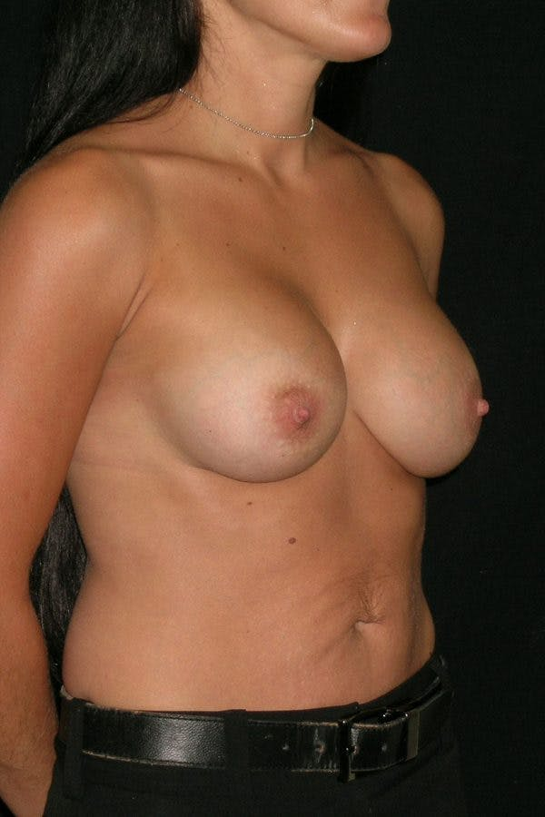 Breast Augmentation Gallery - Patient 23533152 - Image 6