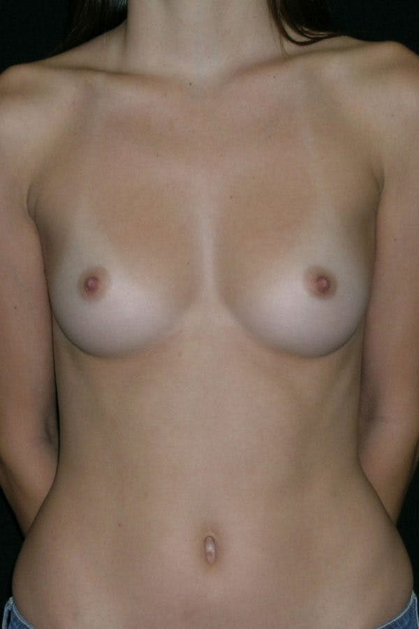 Breast Augmentation Gallery - Patient 23533155 - Image 1