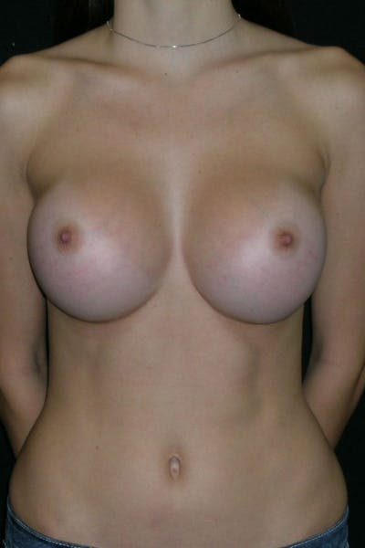 Breast Augmentation Gallery - Patient 23533155 - Image 2