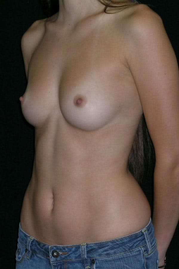 Breast Augmentation Gallery - Patient 23533155 - Image 3