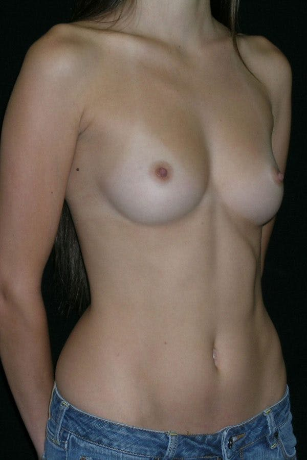 Breast Augmentation Gallery - Patient 23533155 - Image 5