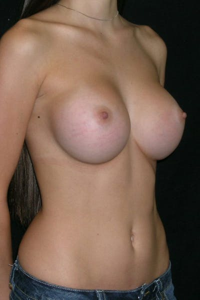Breast Augmentation Gallery - Patient 23533155 - Image 6