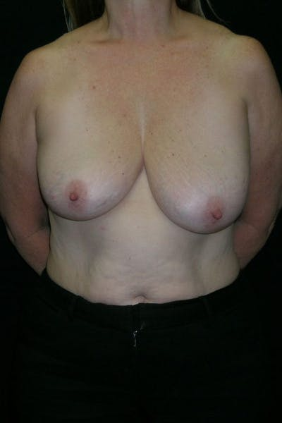 Breast Augmentation Gallery - Patient 23533166 - Image 1