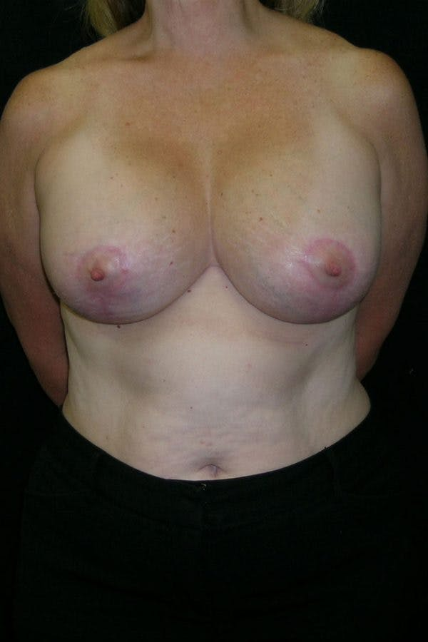Breast Augmentation Gallery - Patient 23533166 - Image 2
