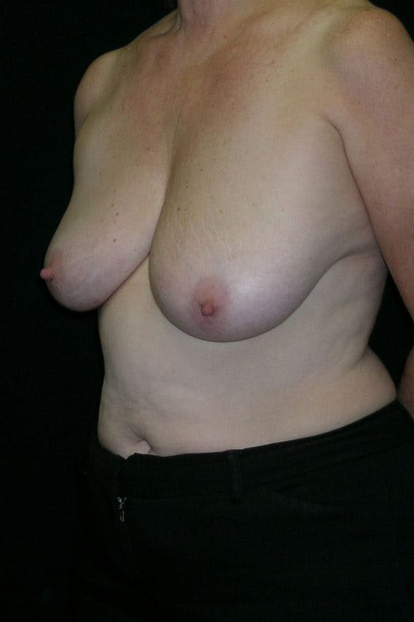 Breast Augmentation Gallery - Patient 23533166 - Image 3