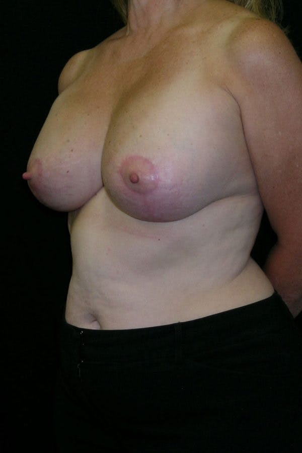 Breast Augmentation Gallery - Patient 23533166 - Image 4