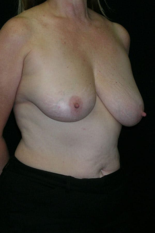 Breast Augmentation Gallery - Patient 23533166 - Image 5