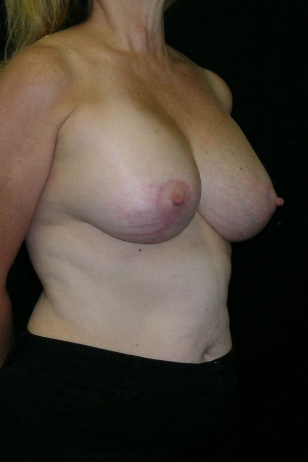 Breast Augmentation Gallery - Patient 23533166 - Image 6
