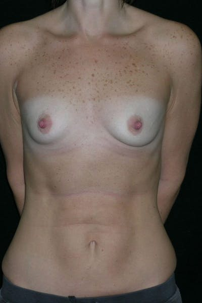 Breast Augmentation Gallery - Patient 23533181 - Image 1
