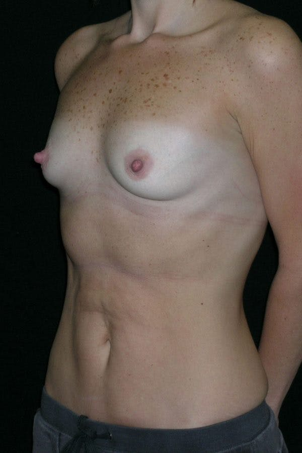 Breast Augmentation Gallery - Patient 23533181 - Image 3